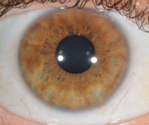 iridologie-naturalistic