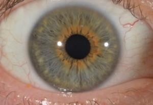 oeilorangeiridologie